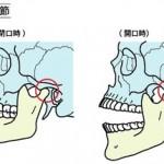 徒手医療協会セミナー|顎関節症01