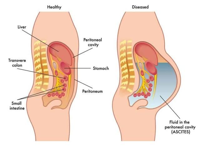 かかと 痛い 内臓 その「踵」の鋭い痛みもしかすると子宮・卵巣の不調が潜んでいるかも...